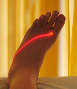 laser quit smoking